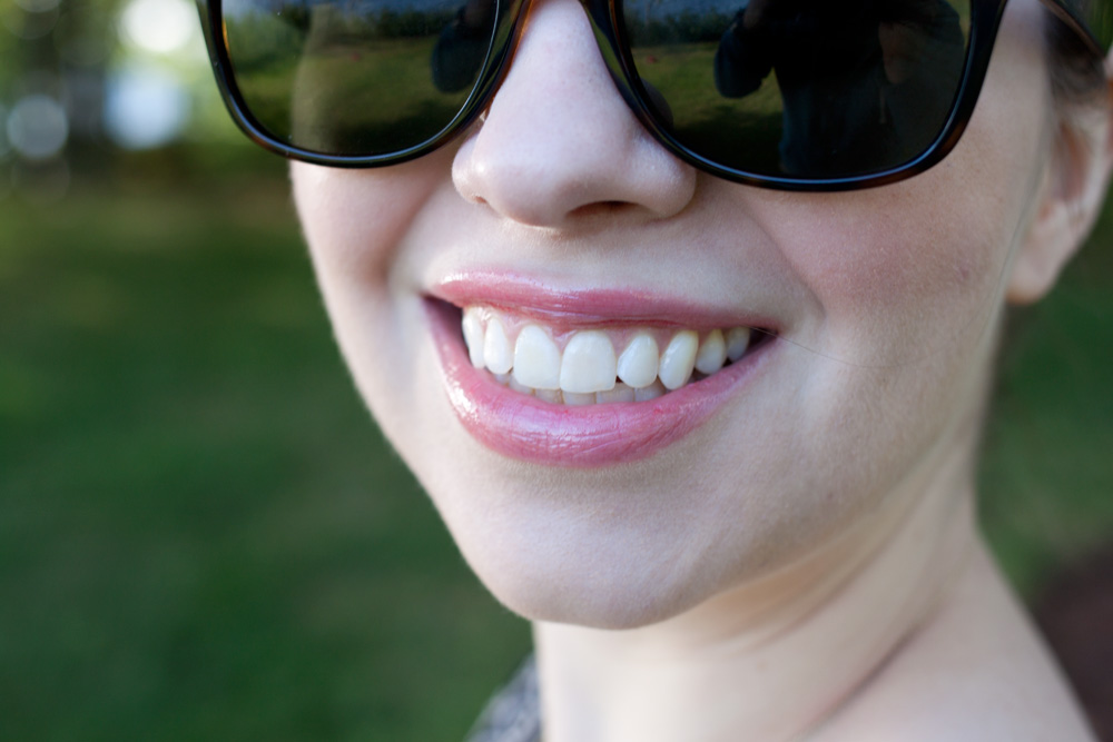 Crooked Teeth with Invisalign #InvisalignTalk / hellorigby!