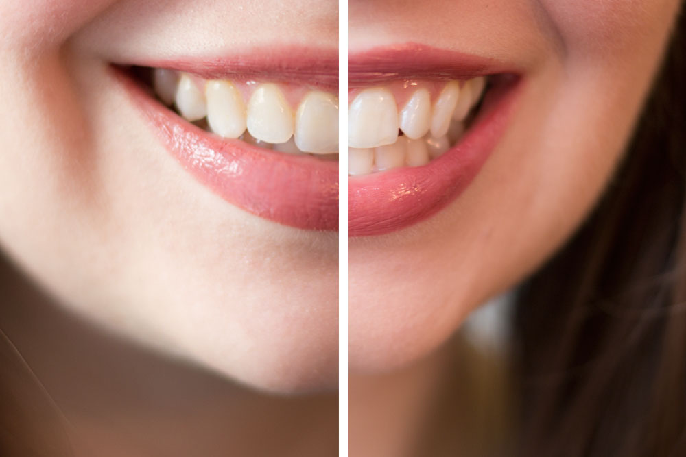 Crest 3D White Brillance Toothpaste System Before & After // hellorigby seattle beauty blog