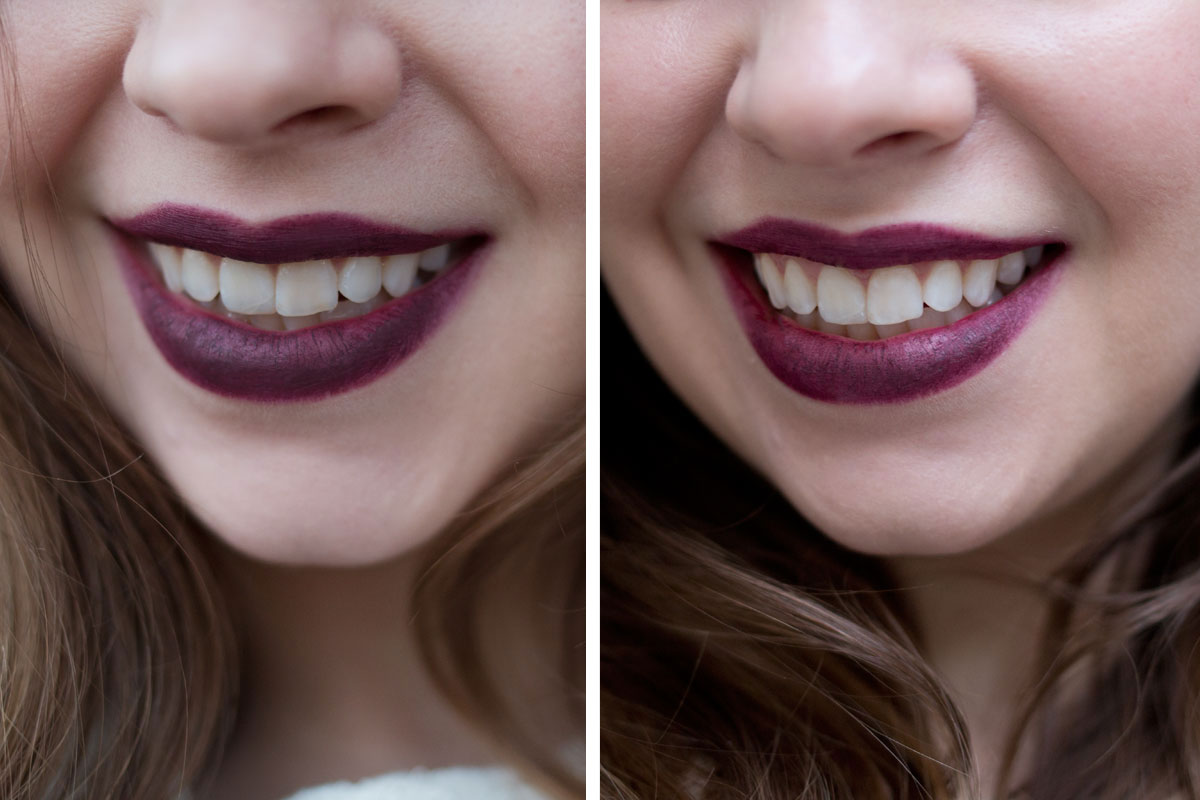 Holiday Photo Posing Tips: Whiten Teeth with Crest White Strips (Before & After) // hellorigby.com seattle lifestyle blog